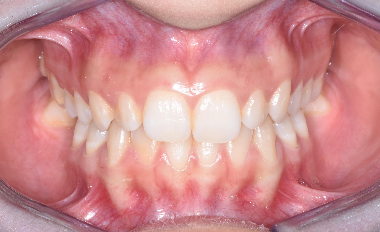 ortodonzia-percorso-diagnostico-gattuso-0