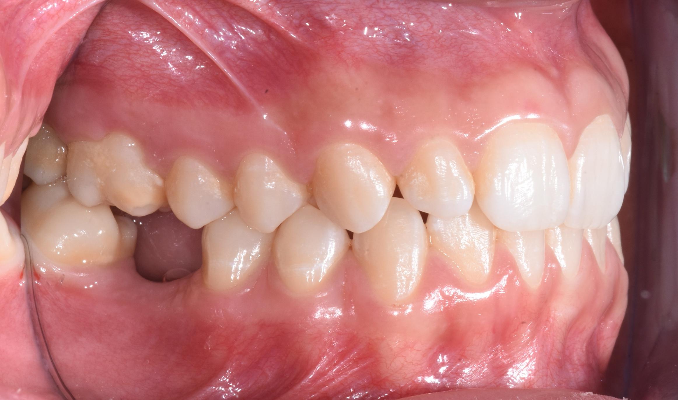 ortodonzia-percorso-diagnostico-gattuso-1