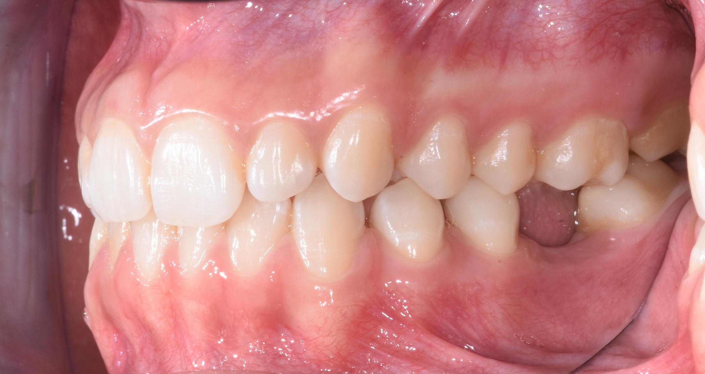 ortodonzia-percorso-diagnostico-gattuso-2