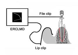 rilevatore-elettronico-apice-radicolare