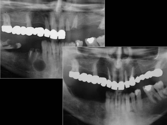 chirurgia-orale-gattuso-0