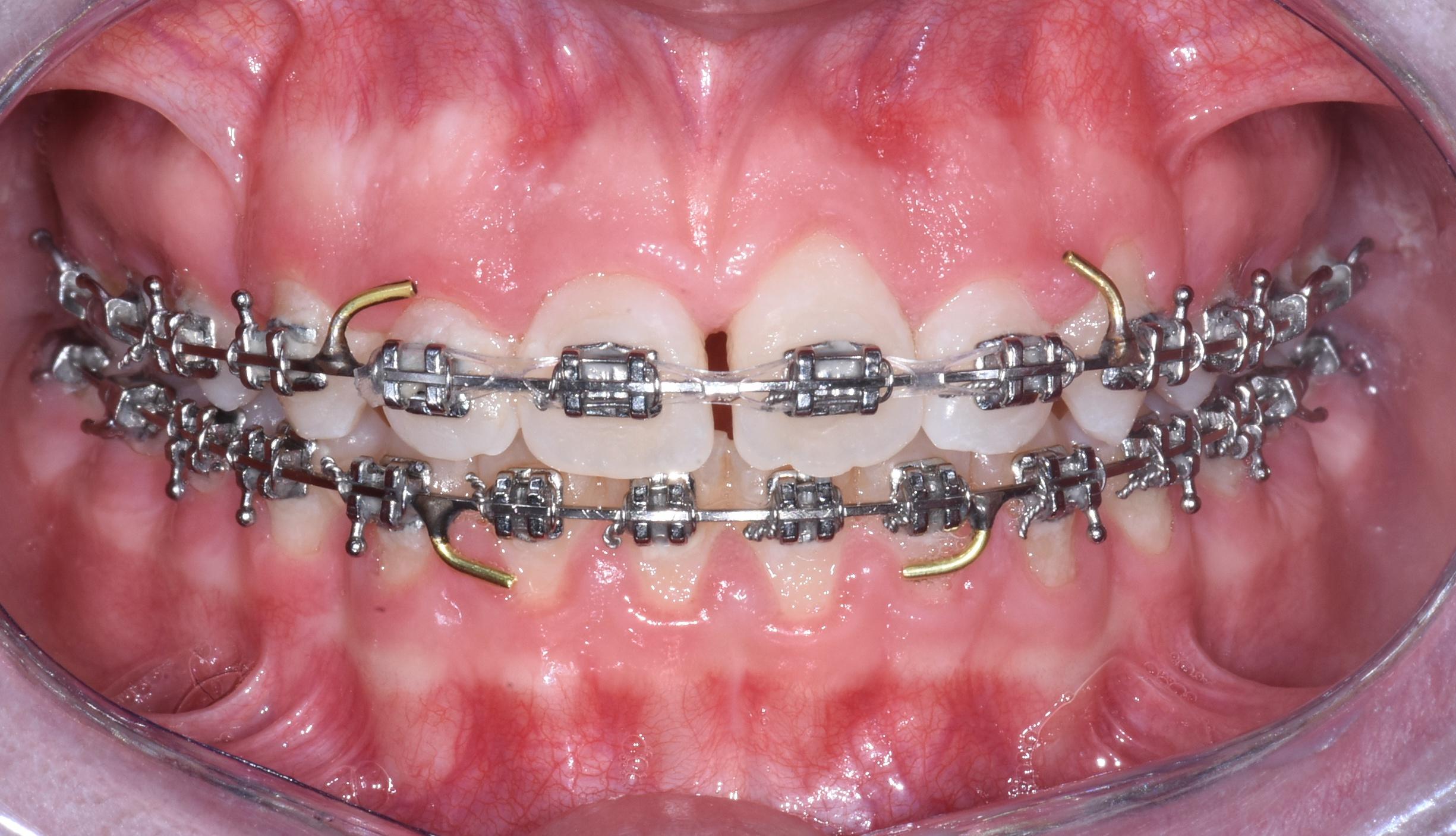 apparecchi-ortodontici-gattuso-0