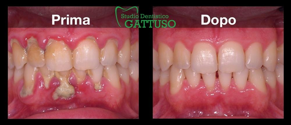 studio dentistico gattuso igiene