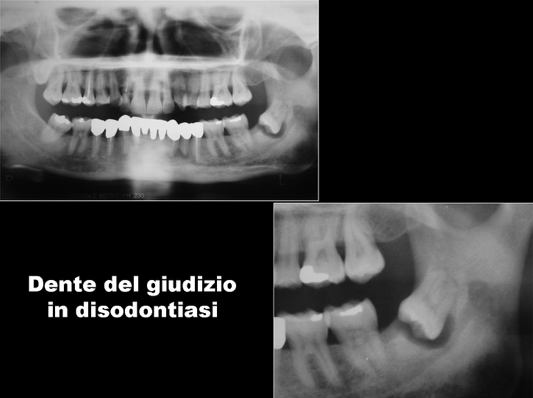 chirurgia-orale-gattuso-1