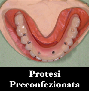 implantologia-computer-assistita-gattuso-dentista-3