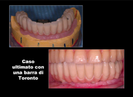 implantologia-computer-assistita-gattuso-dentista-5