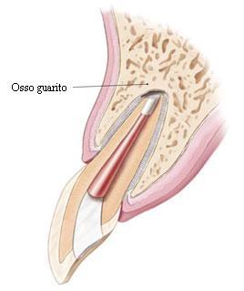 gattuso-chirurgia-endodontica-0