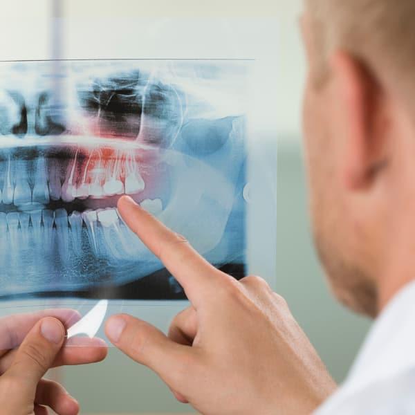 radiologia-studio-dentistico-gattuso